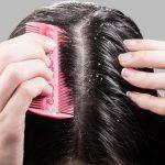 5 نقاط للتخلص من قشرة الشعر المزعجة